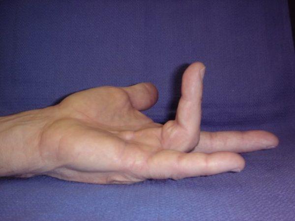 Dupuytrens Disease Treatment
